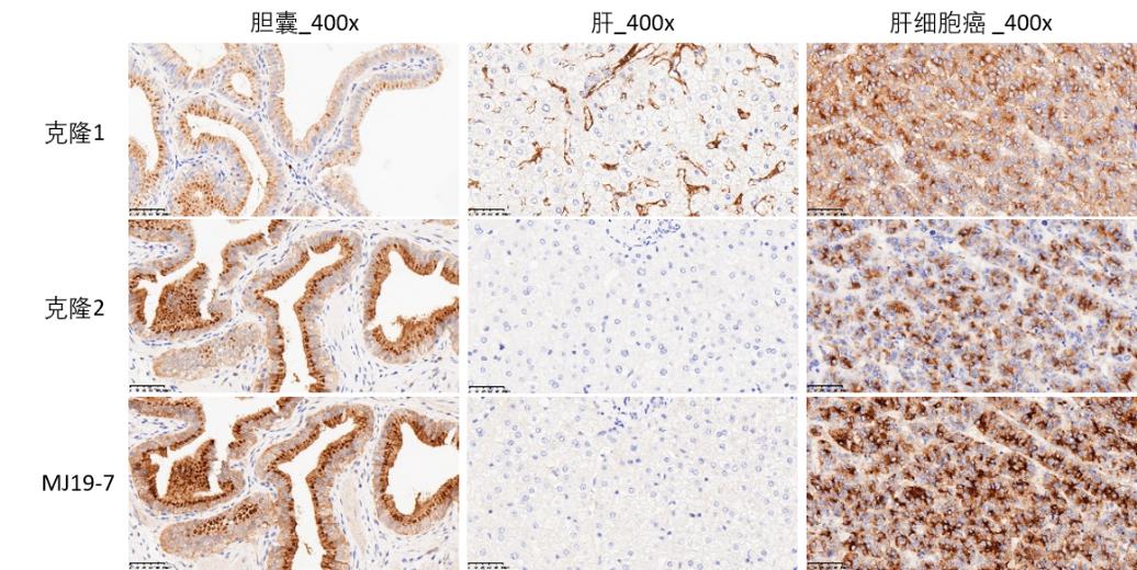 图2. 迈杰转化医学FGF19 (MJ19-7)抗体与商品化FGF19抗体的IHC染色对比