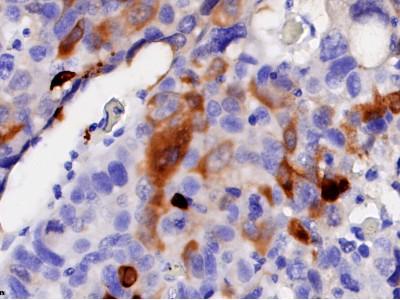 NY-ESO1/2抗体检测试剂