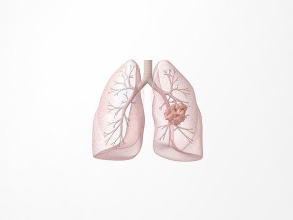 肺结核诊断试剂盒
