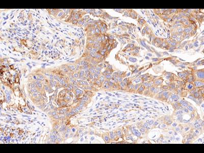 PD-L1抗体检测试剂